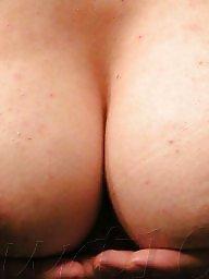 Nipple, Nipples