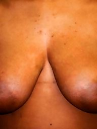 Surgerie, Big boobs nipples amateur, Before amateur, Befor, Beautiful nipples, Beautiful nipple