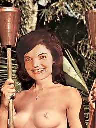 Vintage hairy, Vintage, Vintage celebrities, Jackie